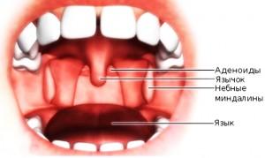 Увеличенные небные и глоточная миндалины – также частая причина храпа