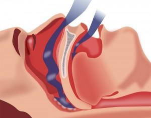 При апноэ сна возникает сужение и периодическое спадение стенок глотки, что проявляется остановками дыхания во сне на фоне храпа