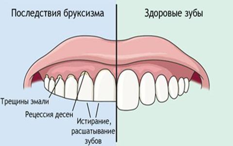 Последствия бруксизма. Лечение в Москве