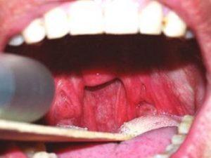 Последствия лечения храпа лазером