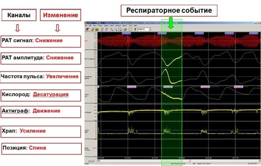 Прибор WatchPAT - диагностика апноэ сна