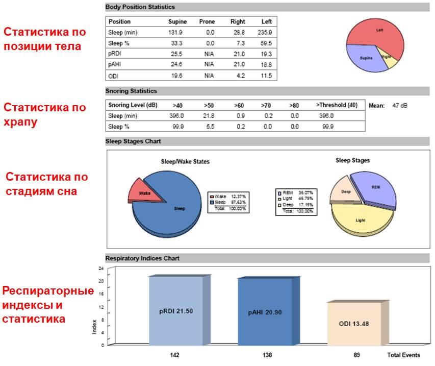 Прибор WatchPAT - результаты диагностики апноэ